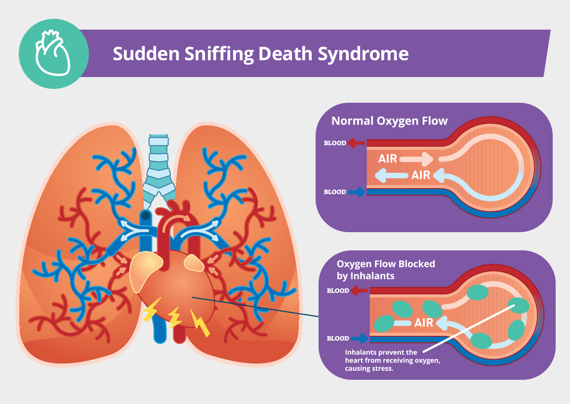 Sudden Sniffing Death Syndrome Infographic